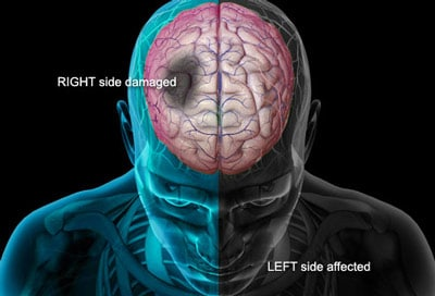 right-left-side-after-stroke