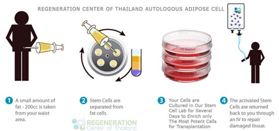 adipose stem cell therapy autologous expansion