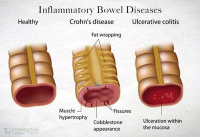 Inflammatory-bowel-disease-cure-stem-cells