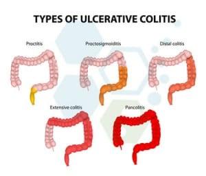 Ulcerative-Colitis-treatment-stem-cells