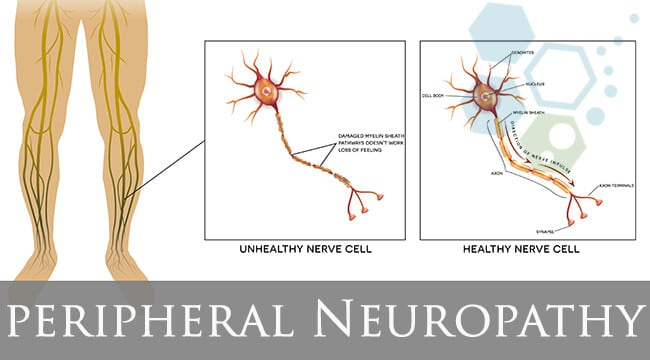 new-peripheral-neuropathy-treatments