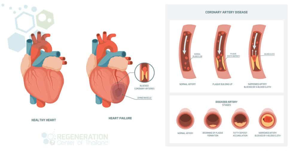 CAD-coronary-artery-atherosclerosis