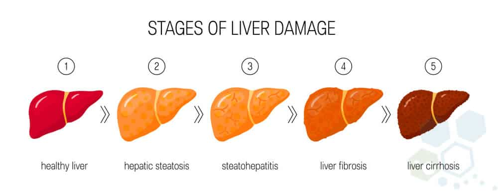 stages of liver failure