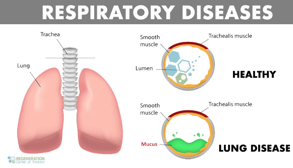 lung-diseases-stemcells