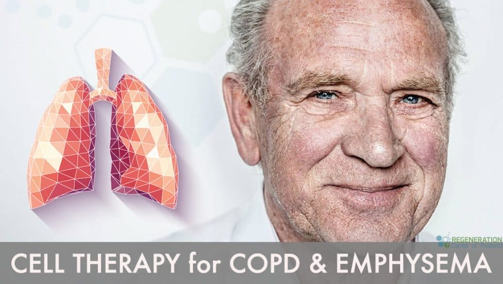stemcells treatment copd