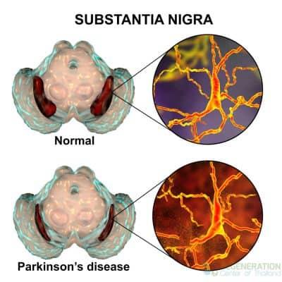 substantia-nigra-stemcells