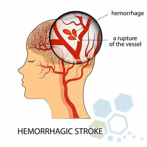 hemorrhagic-stroke-treatment-alteplase