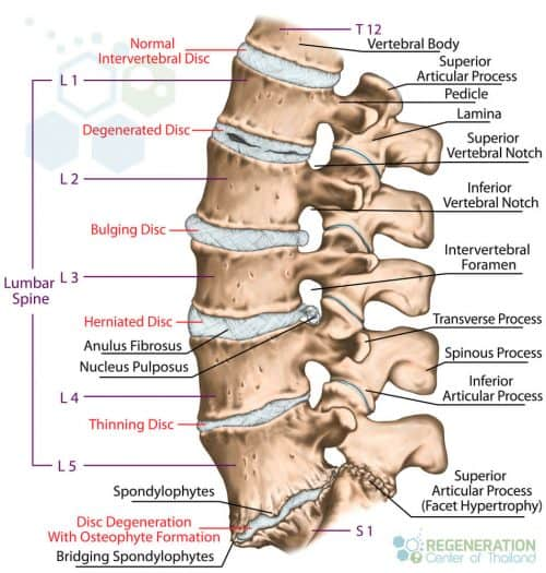 spinal-degeneration-intervertebral-discs