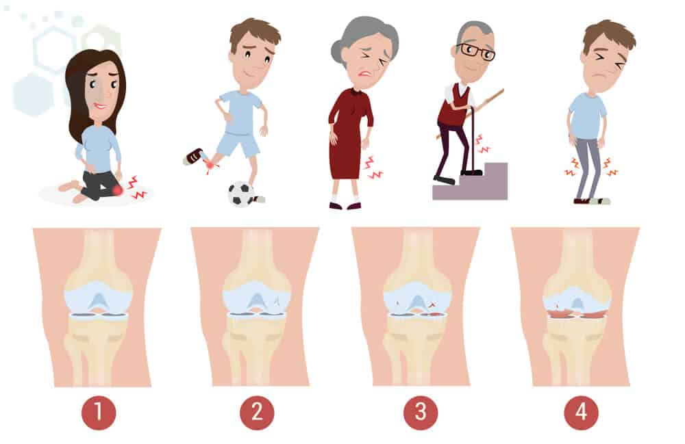 stages-knee-osteoarthritis-stemcells