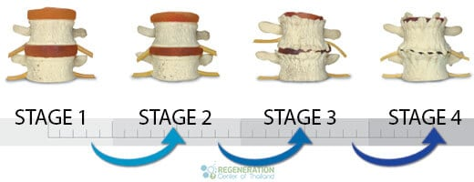 stages-of-ddd-stemcells