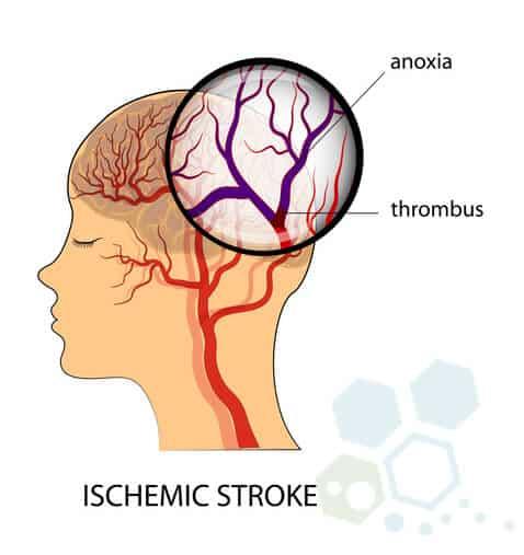 stem-cell-treatment-ischemic-stroke