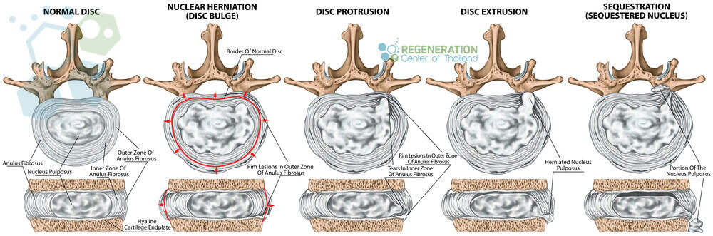 stem-cells-herniated-discs