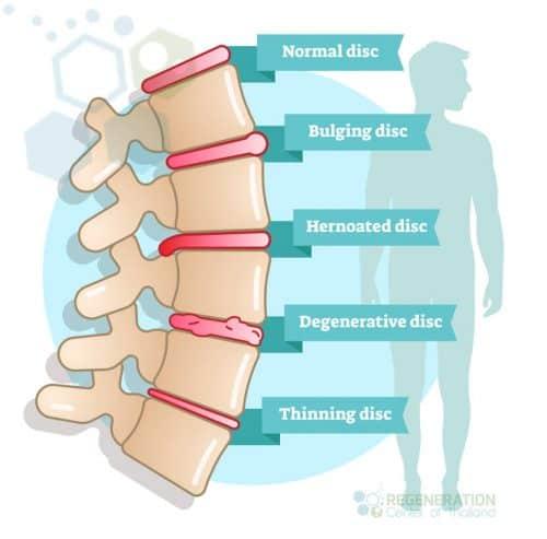 stem-cells-spinal-stenosis