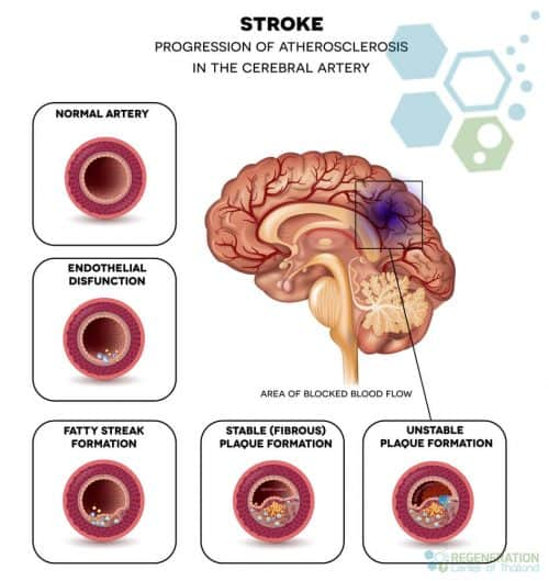 stroke-treament-tissue-plasminogen-activator