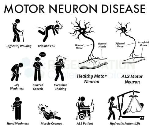 upper-motor-neuron-lesions