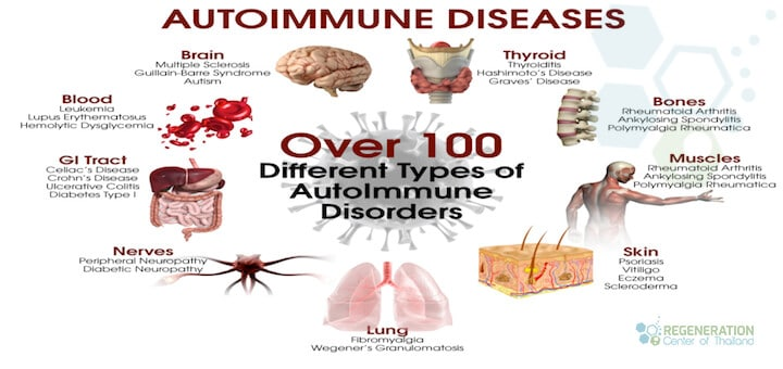 10-common-autoimmune-diseases