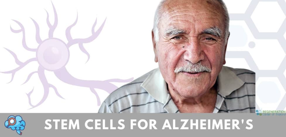 stem-cell-therapy-alzheimers-dementia