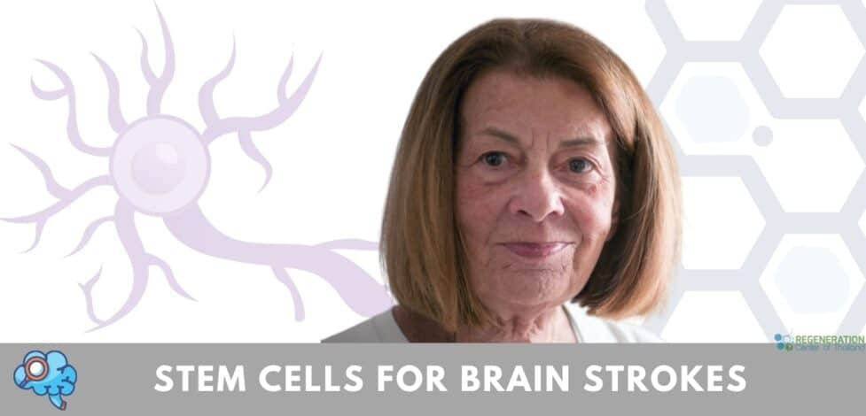 stem cells for treatment of strokes