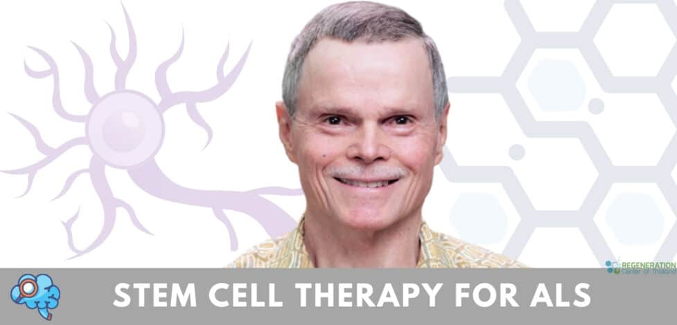 stemcell treatment ALS neural cells