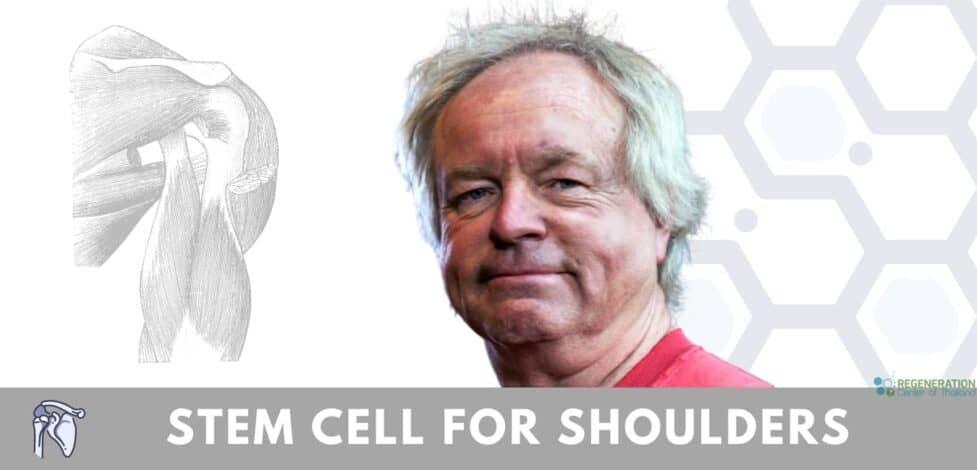 Stem cells treatment for shoulder injuries