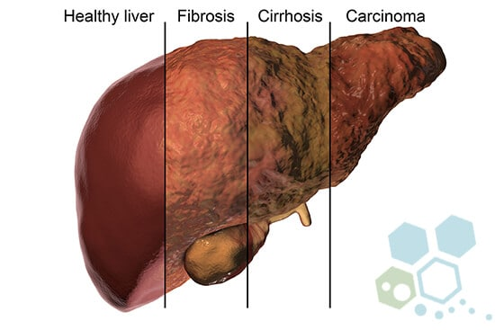 liver-cancer-progression-stages