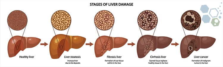 stages-liver-damage-after-cancer