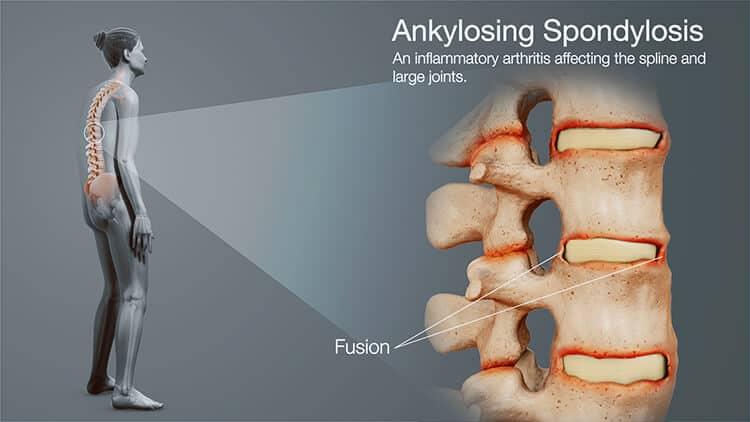 spondyloarthritis ankylosing spondylitis