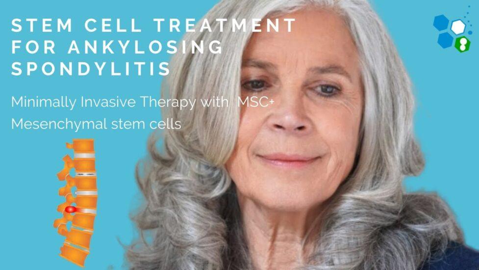 ankylosing spondylitis stem cell treatment