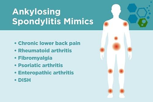 Complications-Risk-Treatment-Axial-spondyloarthritis