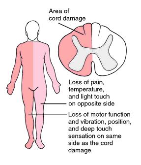 Transverse-myelitis-cure