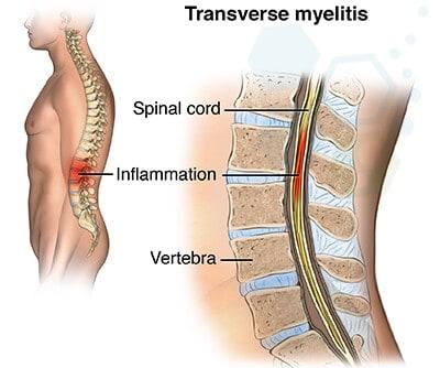 Transverse-myelitis-disease