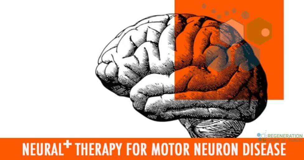 neural-stemcells-motor-neuron-disease