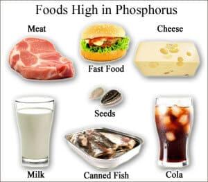 Phosphorus-Foods-KidneyDiet